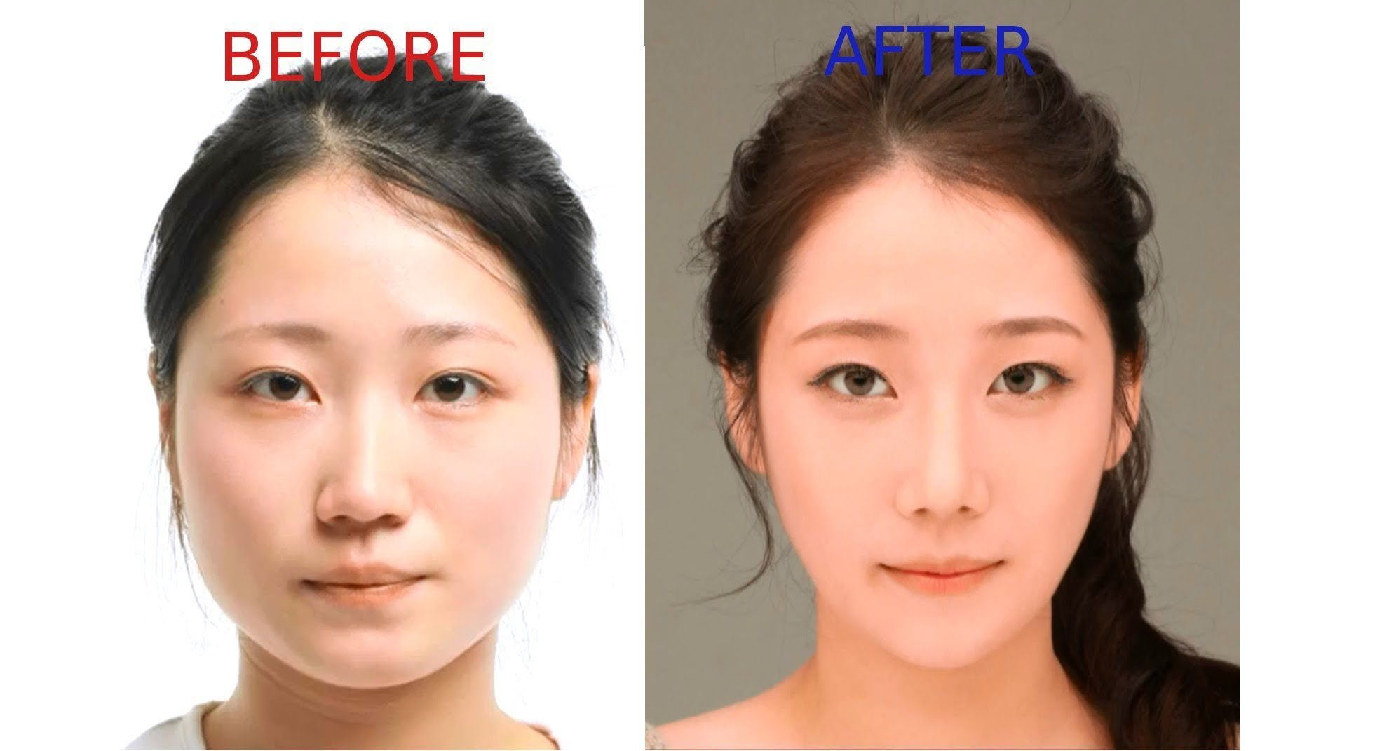 Shaping the Nation: Cosmetic Surgery in Indonesia