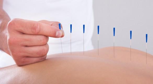 acupuncture-jakarta
